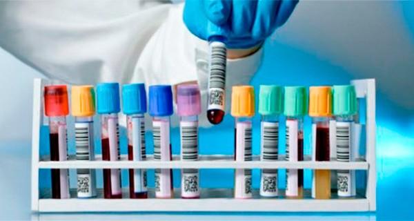 Когда сдавать кровь на гемоглобин после месячных. Почему нельзя быть донором во время месячных