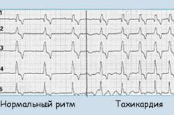 Тахикардия после физической нагрузки